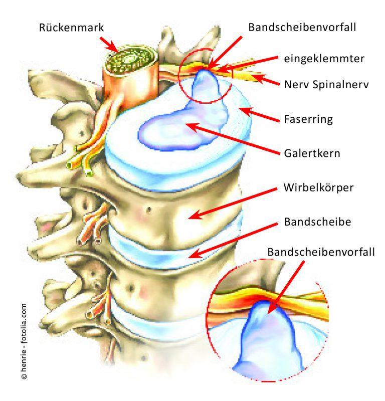 Die Grafik zeigt die Auswirkung eines Bandscheibenvorfalls: Durch das verletzte Bandscheibengewebe tritt Gallertmasse aus, drückt auf die Nervenbahn und löst den Schmerz aus.