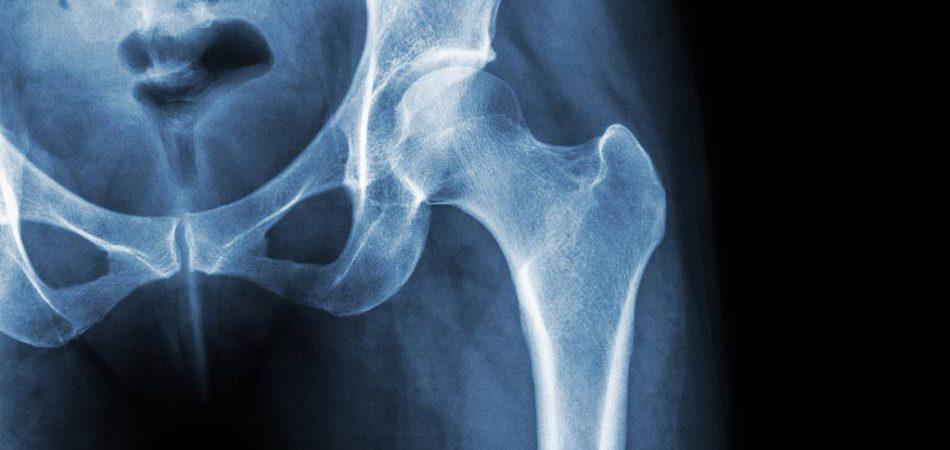 Röntgendiagnostik